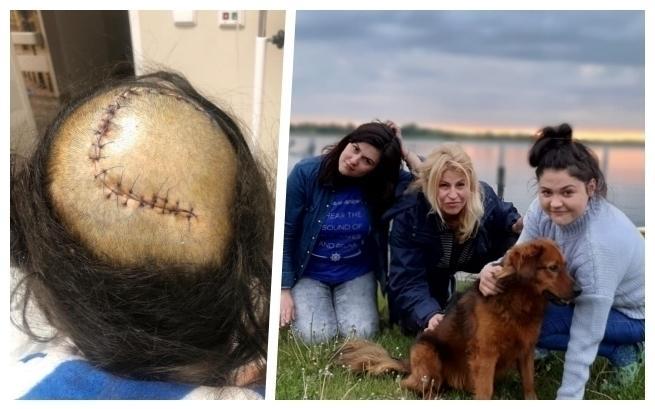 Natalia zeSzczecina zbiera pieniądze naoperację usunięcia guza mózgu